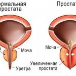 Нормальная простата и увеличенная при простатите