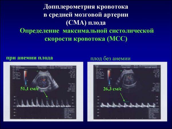 Допплерометрия кровотока в средней мозговой артерии плода