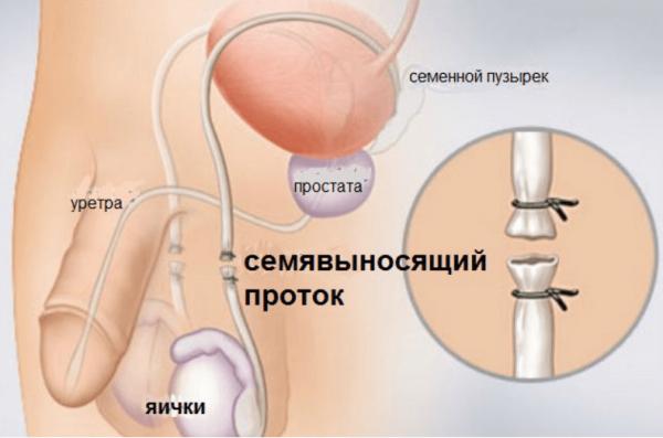 Содержаться сперматозоиды в предсеменной жидкости