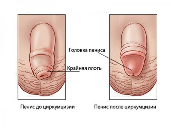 мужской половой орган