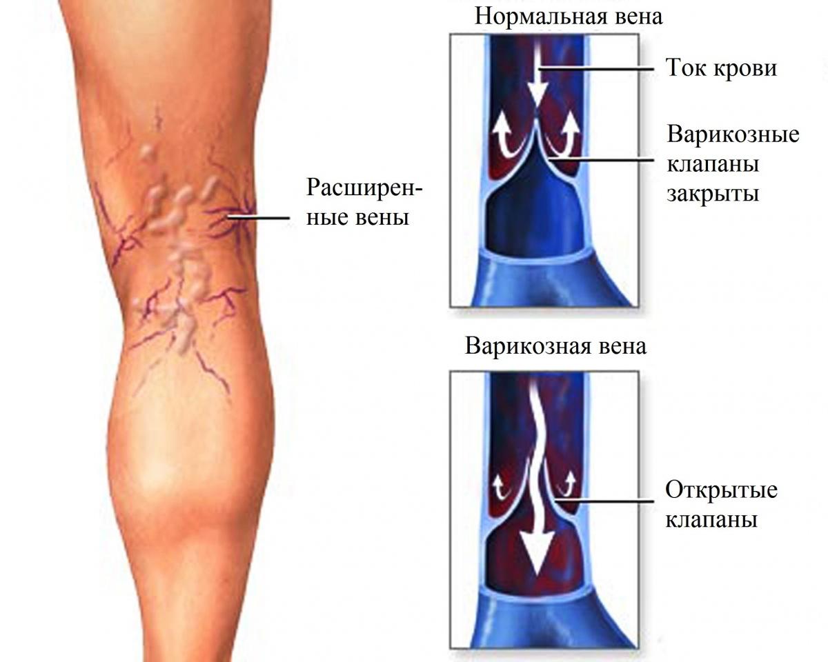 Варикоз на ногах при беременности - что делать Особенности лечения