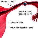 Обычная и внематочная беременность