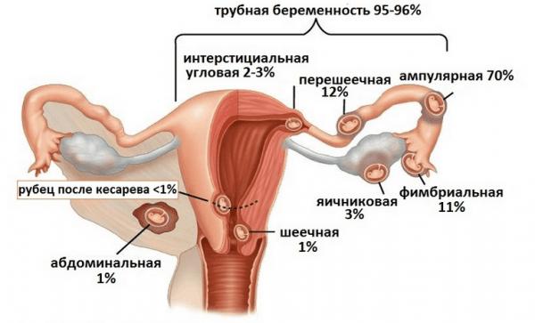 Разновидности внематочной беременности по месту локализации эмбриона
