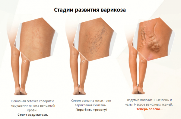 Стадии развития варикозной болезни вен