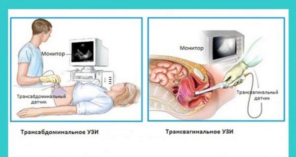 Ультразвуковое исследование на ранних сроках беременности