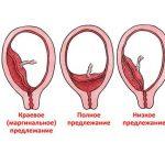 Виды патологическое прикрепления плаценты