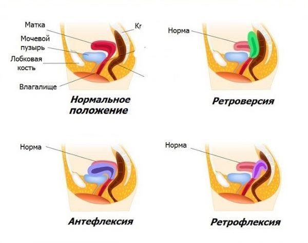 Как забеременеть матка загнута сперма не дежится