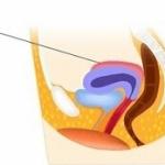 Гиперантефлексия