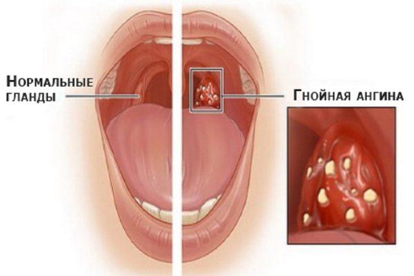 Внешний вид здоровой нёбной миндалины и поражённой при гнойной ангине