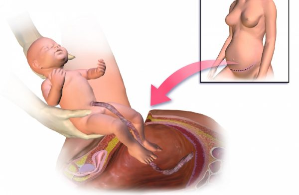 Кесарево сечение: рисунок