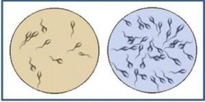 Низкая активность спермотозоидов