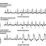 Электрокардиограмма при пароксизмальной тахикардии