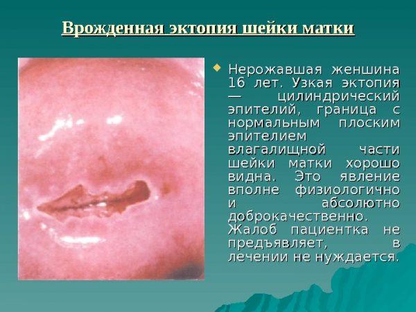 Пример врождённой эрозии (эктопии)