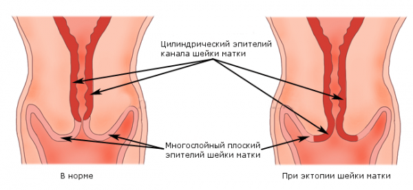 Расположение цилиндрических клеток эпителия на поверхности цервикса в норме и при эктопии