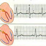 Электрокардиограмма при синусовой тахикардии