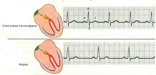 Синусовый ритм сердца норма у беременных 30