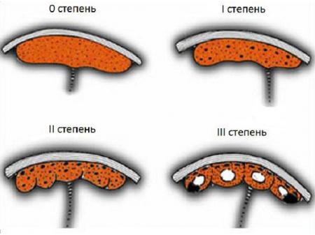 Стадии созревания плаценты