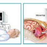 Ультразвуковое исследование внутренних половых органов трансфоминальный и трансвагинальные методы
