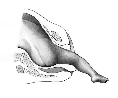 Выпадение ножки плода на рисунке
