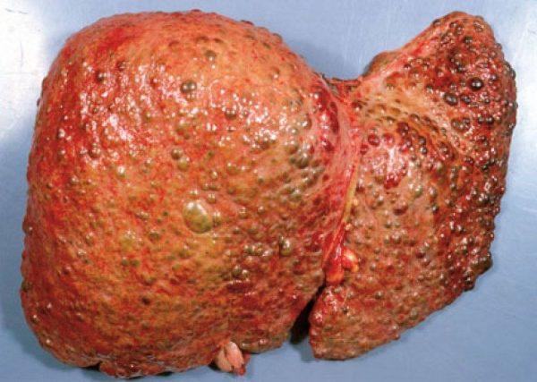 Печень, поражённая циррозом