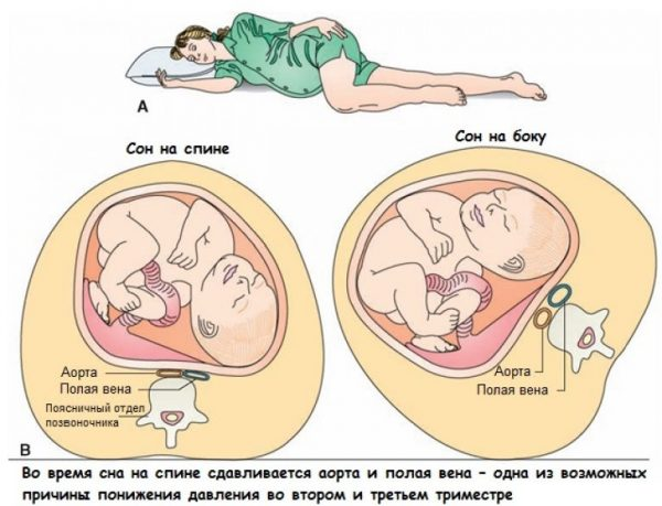 Давление матки на аорту и вену в положении лёжа на спине и на боку