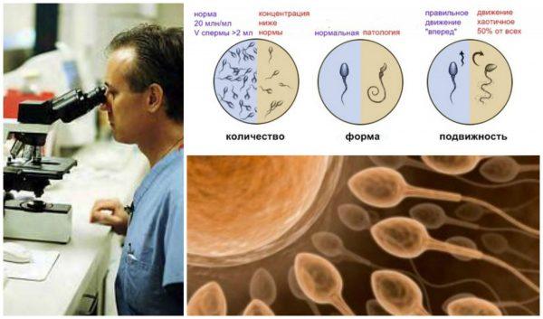 Врач рассматривает под микроскопом сперматозоиды и их подвижность