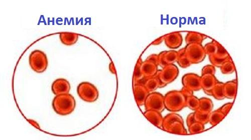 Количество гемоглобина при анемии и в норме