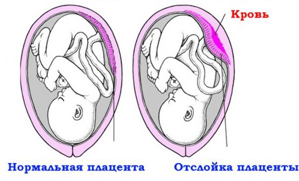 Нормальная плацента и её отслойка на рисунке