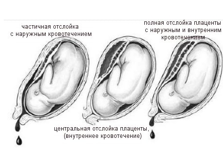 Кровотечение при отслойке плаценты