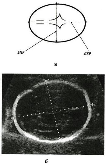 Схема и способ измерения бипариетального размера (БПР)