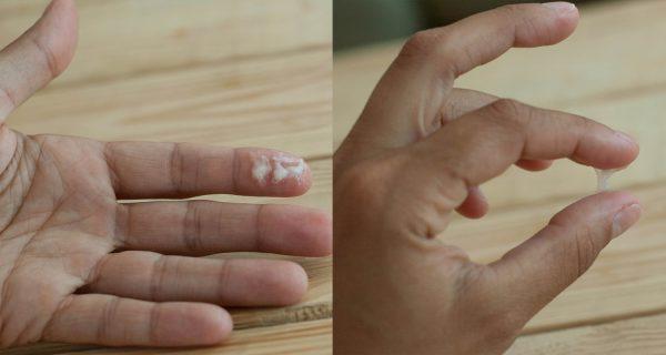 Густые вагинальные выделения на женской руке