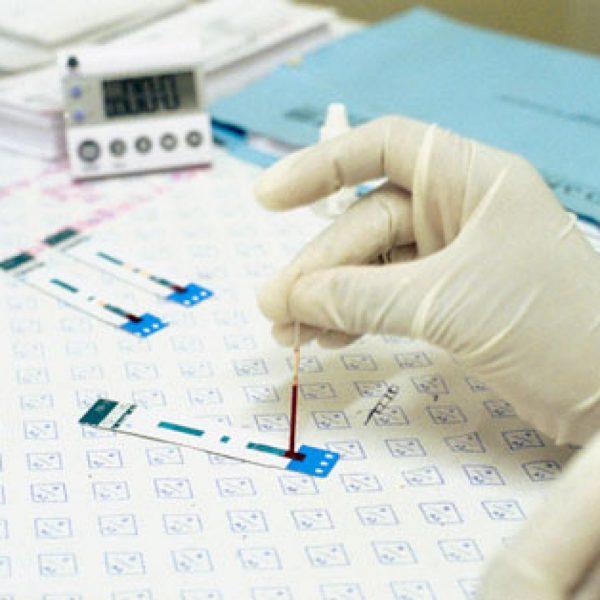 Кровь в руках лаборанта во время исследования на наличие ХГЧ