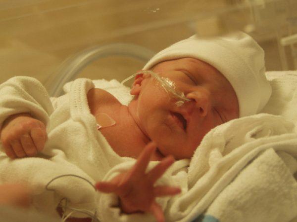 новорождённый в кувезе с катетером