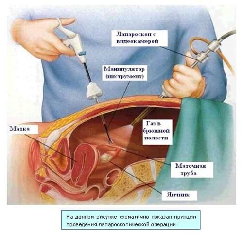 Схематичное изображение операции методом лапароскопии