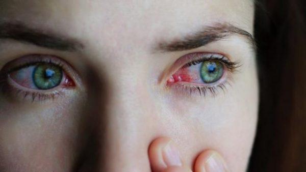 У женщины глаза красные и слезятся от конъюнктивита