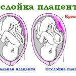 Вариант нормального прикрепления плаценты и её отслойки