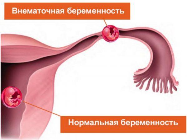 Внематочная и нормальная беременность
