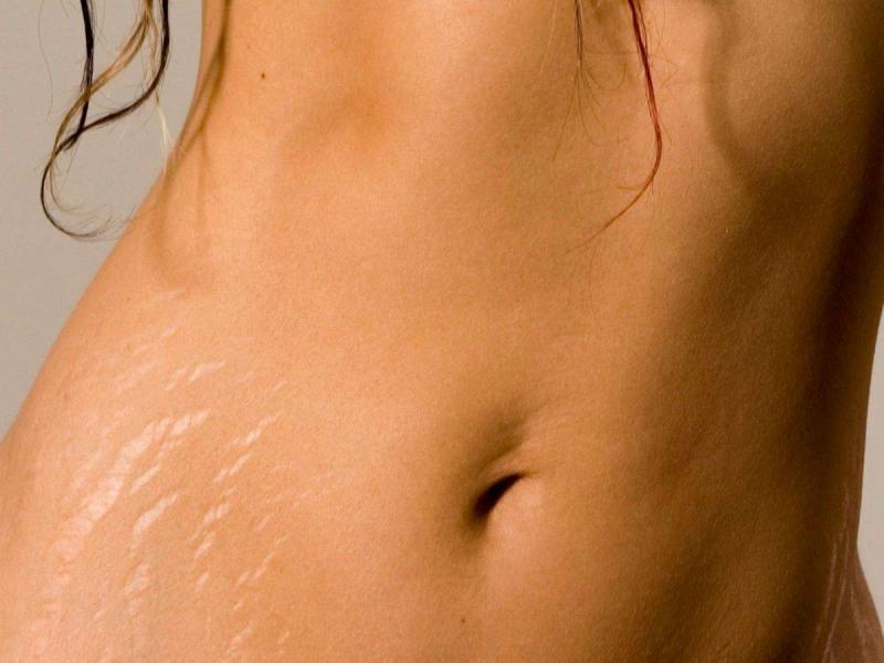 Применение кремов от растяжек при беременности