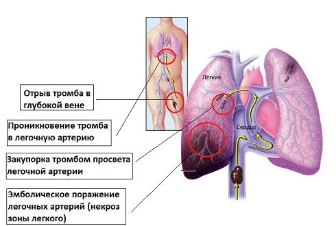 Развитие лёгочной артерии