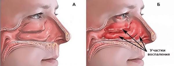 Сравнение нормального и воспалённого состояния носовой полости при рините в рисунках
