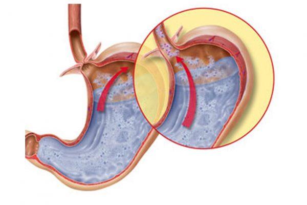 Изображение содержимого желудка при закрытом и открытом пищеводном сфинктере