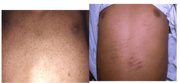 Проявление признаков геморрагического синдрома кожных покровов