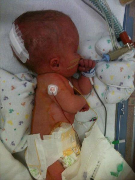 новорождённый с гидроцефалией