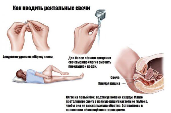 Инструкция по введению ректальной свечи в анальное отверстие