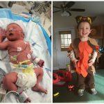 Ребёнок, рождённый на 35-й неделе при помощи экстренного КС