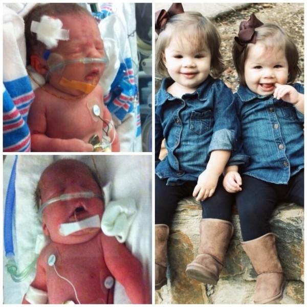 Как выглядят близнецы, рождённые на 35-й неделе