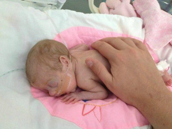 новорождённый с малым весом лежит с катетером