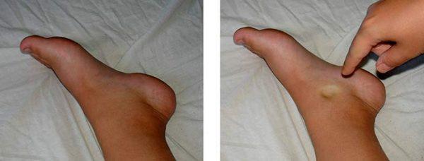 Отечные ноги беременной