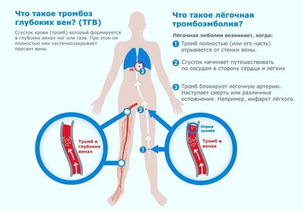 схематическое изображение возникновения тромбоза глубоких вен и легочной тромбоэмболии