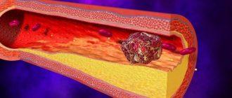 Тромбофилия при беременности